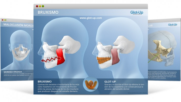 Diapositivas Glot-Up